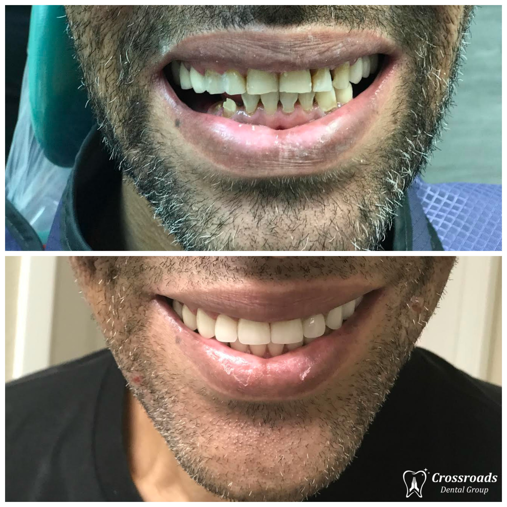 Dentures and partial dentures crossroads dental group previousnext solutioingenieria Image collections